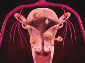 Мифы о миоме матки